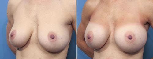 Breast Augmentation Gallery - Patient 58470360 - Image 2