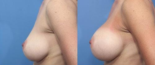 Breast Augmentation Gallery - Patient 58470360 - Image 3