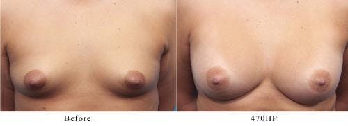 Breast Augmentation Gallery - Patient 58470362 - Image 1