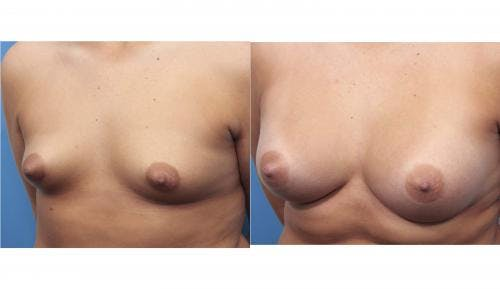 Breast Augmentation Gallery - Patient 58470362 - Image 2