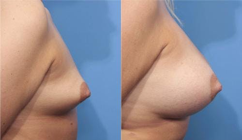 Breast Augmentation Gallery - Patient 58470362 - Image 3