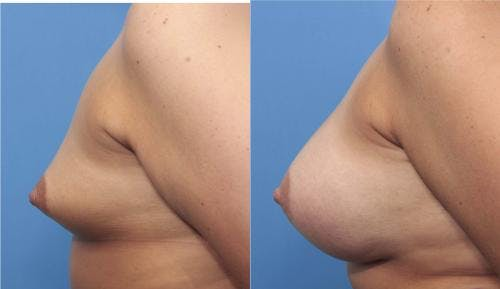 Breast Augmentation Gallery - Patient 58470362 - Image 4