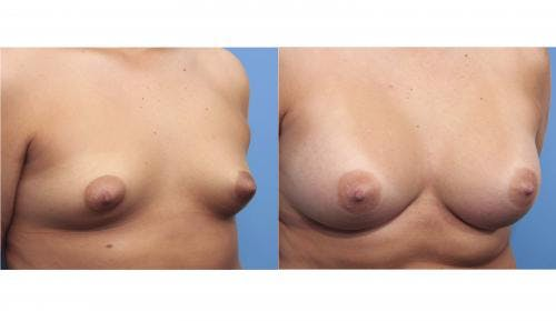 Breast Augmentation Gallery - Patient 58470362 - Image 5