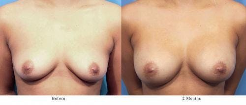 Breast Augmentation Gallery - Patient 58470364 - Image 1