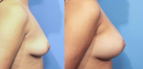 Breast Augmentation Gallery - Patient 58470364 - Image 2