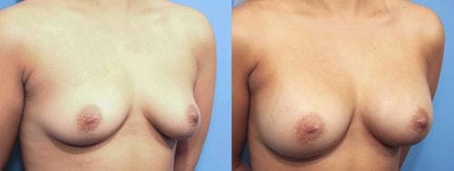 Breast Augmentation Gallery - Patient 58470364 - Image 3