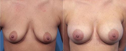 Breast Augmentation Gallery - Patient 58470365 - Image 1