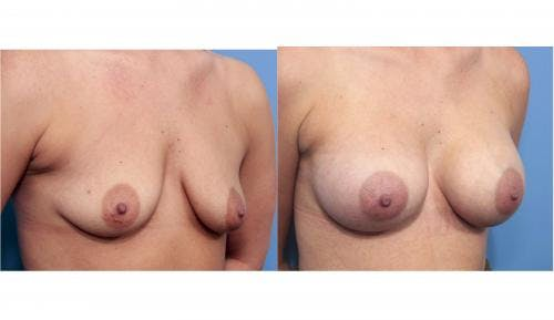 Breast Augmentation Gallery - Patient 58470365 - Image 2