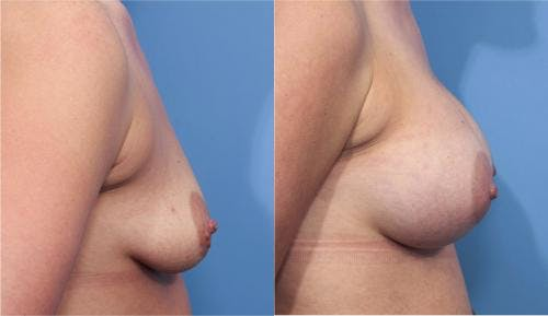 Breast Augmentation Gallery - Patient 58470365 - Image 4