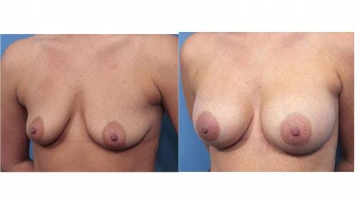 Breast Augmentation Gallery - Patient 58470365 - Image 5