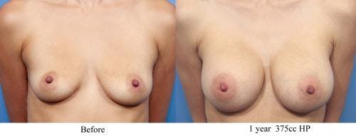 Breast Augmentation Gallery - Patient 58470366 - Image 1