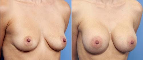 Breast Augmentation Gallery - Patient 58470366 - Image 2