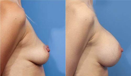 Breast Augmentation Gallery - Patient 58470366 - Image 3