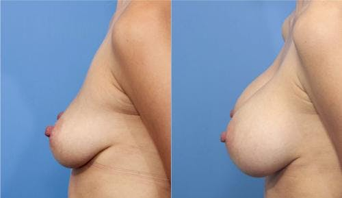 Breast Augmentation Gallery - Patient 58470366 - Image 4