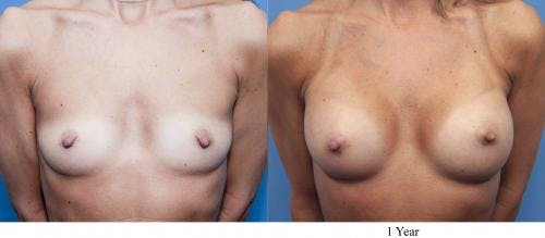 Breast Augmentation Gallery - Patient 58470368 - Image 1