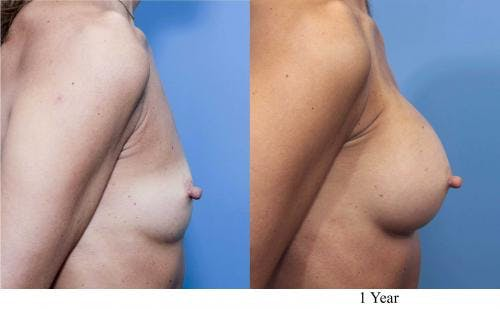 Breast Augmentation Gallery - Patient 58470368 - Image 2