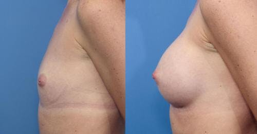 Breast Augmentation Gallery - Patient 58470370 - Image 2