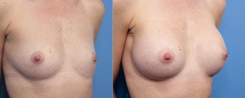 Breast Augmentation Gallery - Patient 58470370 - Image 3