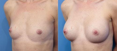 Breast Augmentation Gallery - Patient 58470370 - Image 4