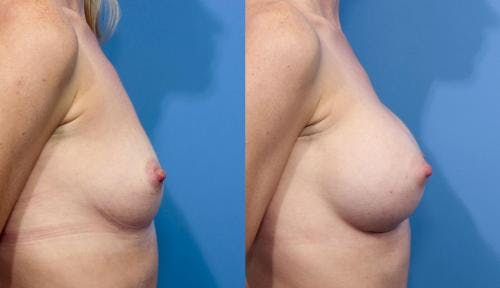 Breast Augmentation Gallery - Patient 58470370 - Image 5
