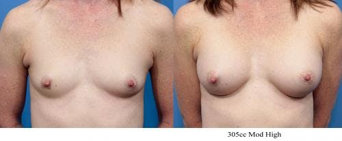 Breast Augmentation Gallery - Patient 58470373 - Image 1