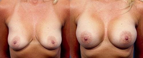 Breast Augmentation Gallery - Patient 58470437 - Image 1