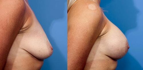 Breast Augmentation Gallery - Patient 58470437 - Image 2
