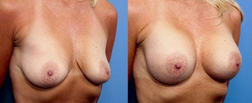 Breast Augmentation Gallery - Patient 58470437 - Image 3