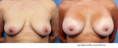 Breast Augmentation Gallery - Patient 58470439 - Image 1