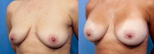 Breast Augmentation Gallery - Patient 58470439 - Image 2