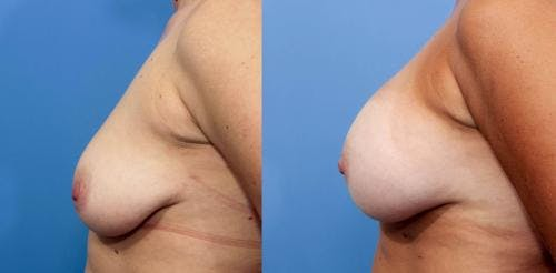 Breast Augmentation Gallery - Patient 58470439 - Image 3