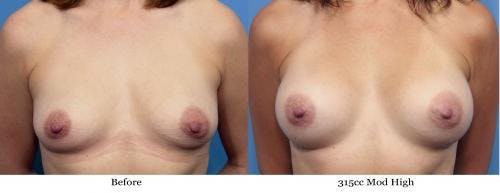 Breast Augmentation Gallery - Patient 58470442 - Image 1