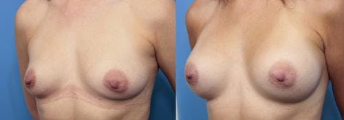 Breast Augmentation Gallery - Patient 58470442 - Image 2