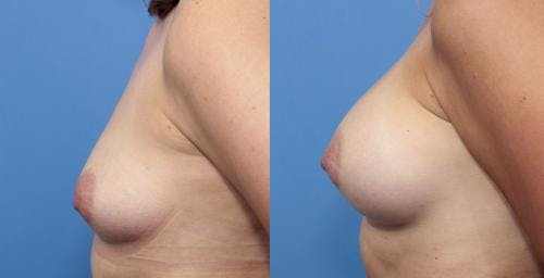 Breast Augmentation Gallery - Patient 58470442 - Image 3