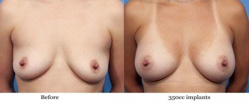 Breast Augmentation Gallery - Patient 58470443 - Image 1