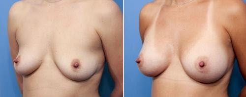 Breast Augmentation Gallery - Patient 58470443 - Image 2