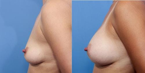 Breast Augmentation Gallery - Patient 58470443 - Image 3