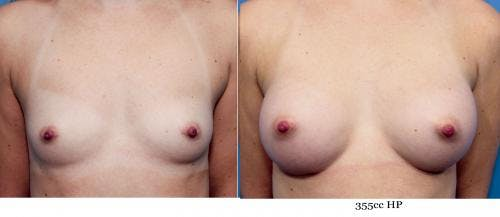 Breast Augmentation Gallery - Patient 58470444 - Image 1