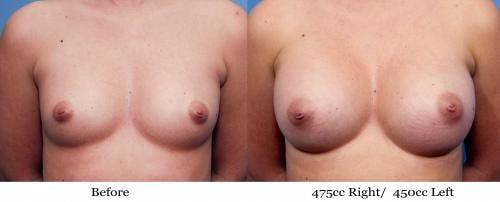 Breast Augmentation Gallery - Patient 58470447 - Image 1