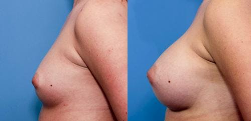 Breast Augmentation Gallery - Patient 58470447 - Image 2