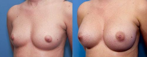 Breast Augmentation Gallery - Patient 58470447 - Image 3