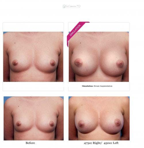 Breast Augmentation Gallery - Patient 58470447 - Image 4
