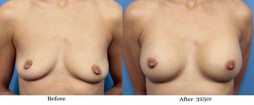 Breast Augmentation Gallery - Patient 58470448 - Image 1