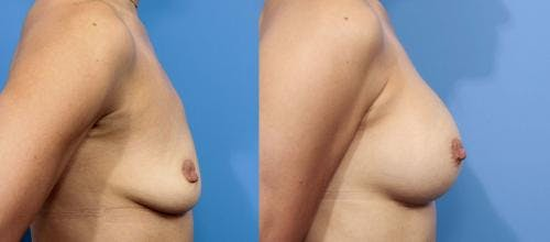 Breast Augmentation Gallery - Patient 58470448 - Image 2