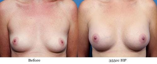 Breast Augmentation Gallery - Patient 58470449 - Image 1