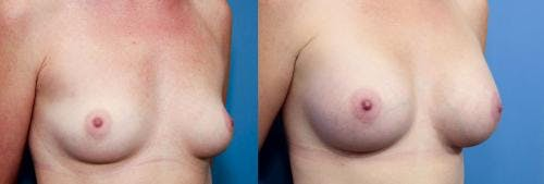 Breast Augmentation Gallery - Patient 58470449 - Image 2