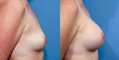 Breast Augmentation Gallery - Patient 58470449 - Image 3