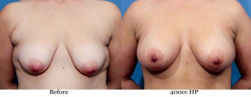 Breast Augmentation Gallery - Patient 58470450 - Image 1