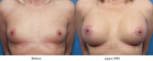 Breast Augmentation Gallery - Patient 58470451 - Image 1