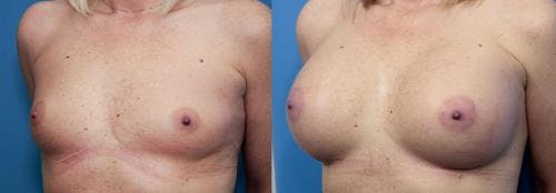 Breast Augmentation Gallery - Patient 58470451 - Image 2